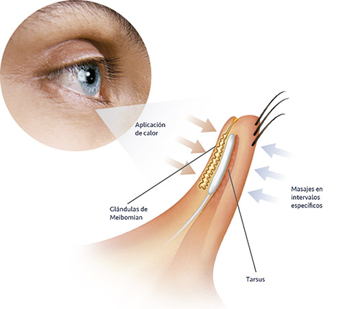 Cleanlid, one of our 3 treatments for dry eye