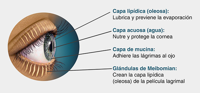 Dry eye can be caused by different causes